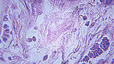 Breast Cancer Cells Image