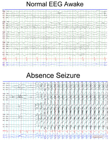 Normal EEG Awake compared to Absence Seizures.