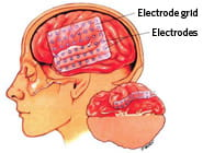 Brain mapping (Epilepsy Focus mapping)