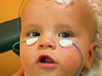 electroretinogram patch placement on a toddler