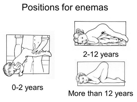Positions for administering an enema