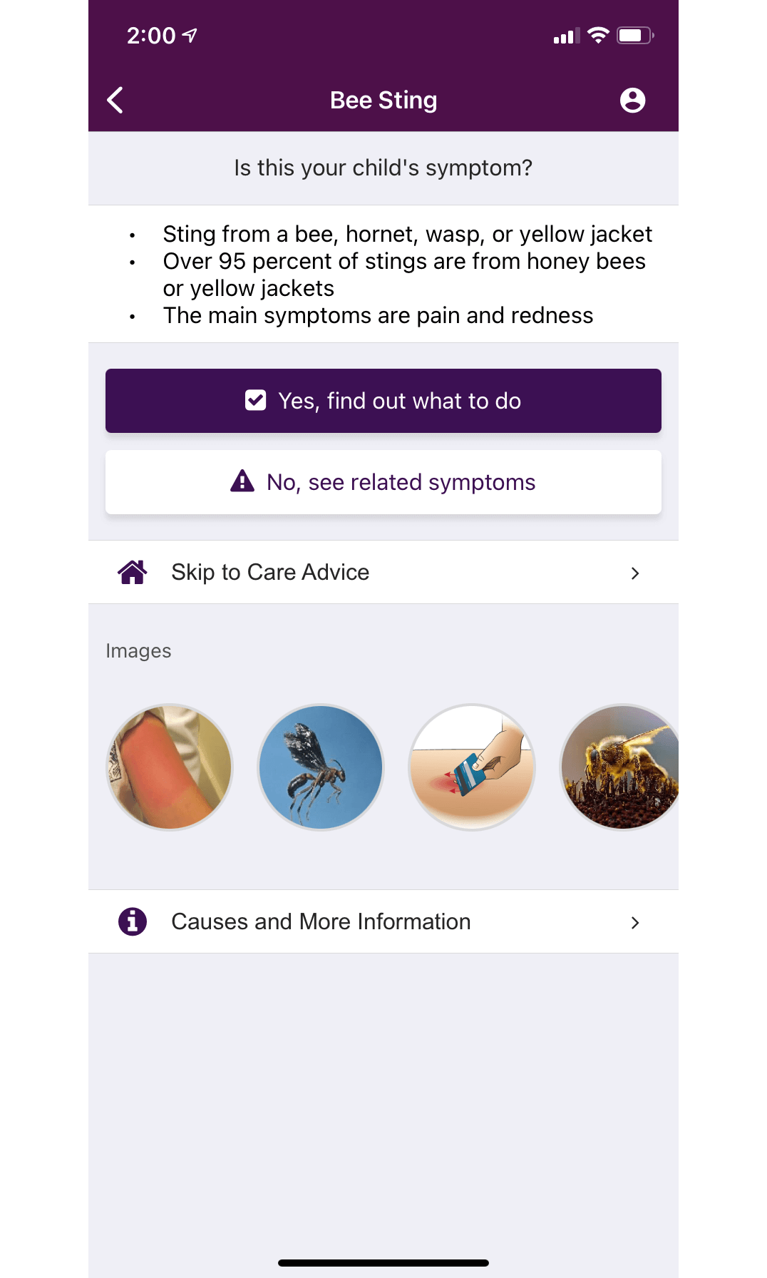 ChildrensPGH Bee Sting Symptoms