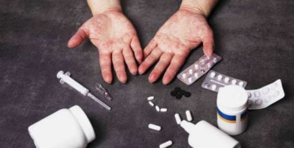 2020 Update in Internal Medicine Approach to Common Drug Allergies