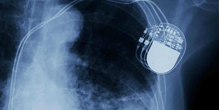 Advanced Heart Failure and VADs in the Community