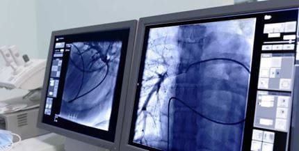 Transradial Cardiac CATHPCI An Update for Clinicians