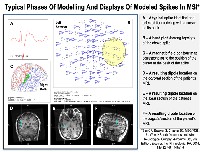 Typical phases of modeling and displays of modeled spikes in Magnetic Source Imaging