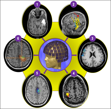 magnetic source imaging