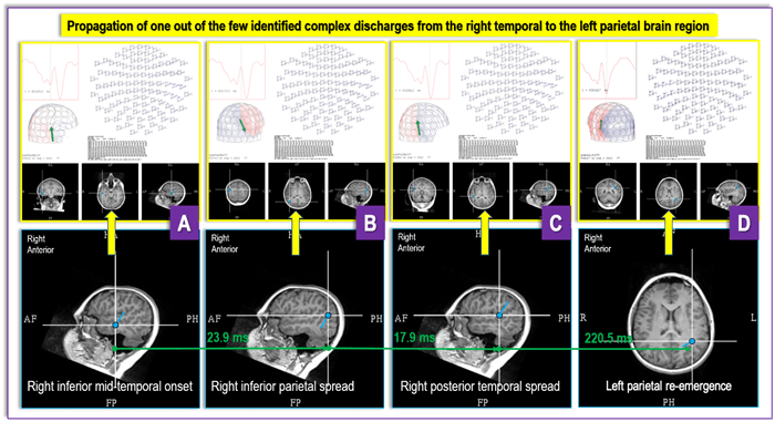 """findings from a recent DRE MEG referral from UPMC Children's Hospital of Pittsburgh for a case with """"generalized"""" and """"multifocal"""" EEG findings"""