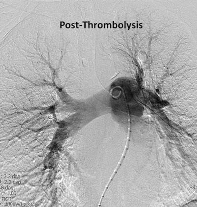 Post-Thrombolysis