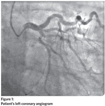 Patient's left coronary angiogram
