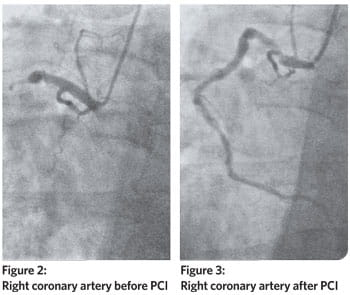 Right coronary artery before and after PCI