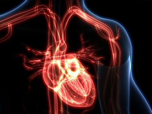 Heart x-ray graphic