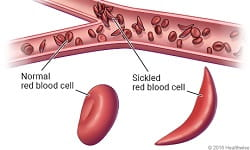 Sickle Cell feature
