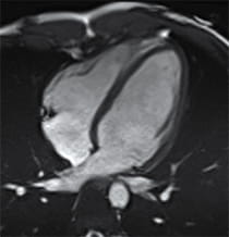 Image of normal heart.