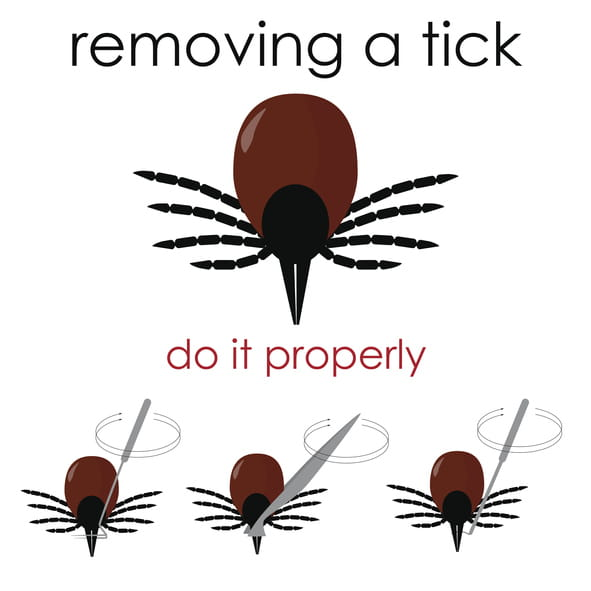 Tick Removal at UPMC